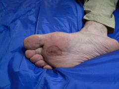 Ken's enormous blisters raised after fast hike